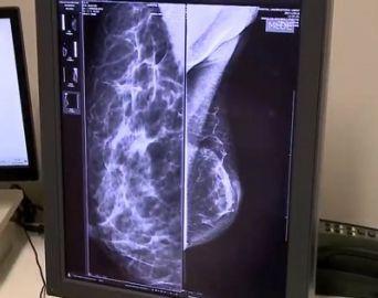 Hospital das Clínicas de Botucatu tem centro especializado em mastologia