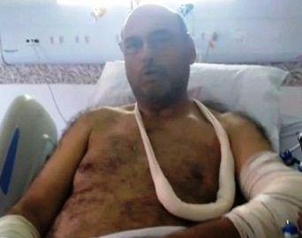 Poio Novaes sofre queda de bicicleta e passa por cirurgias